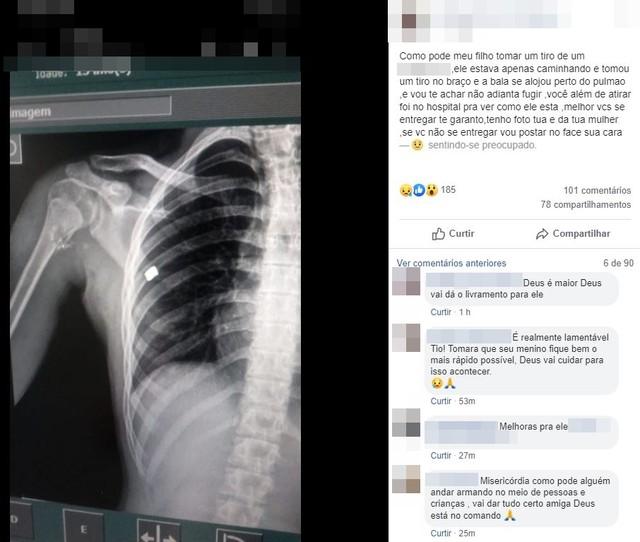 Raio X mostra bala alojada em adolescente ferido durante briga no carnaval